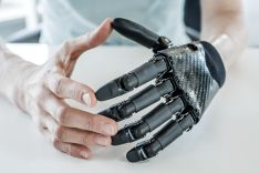 Bionic Hand prosthesis by Dr. Stefan Schulz and his team